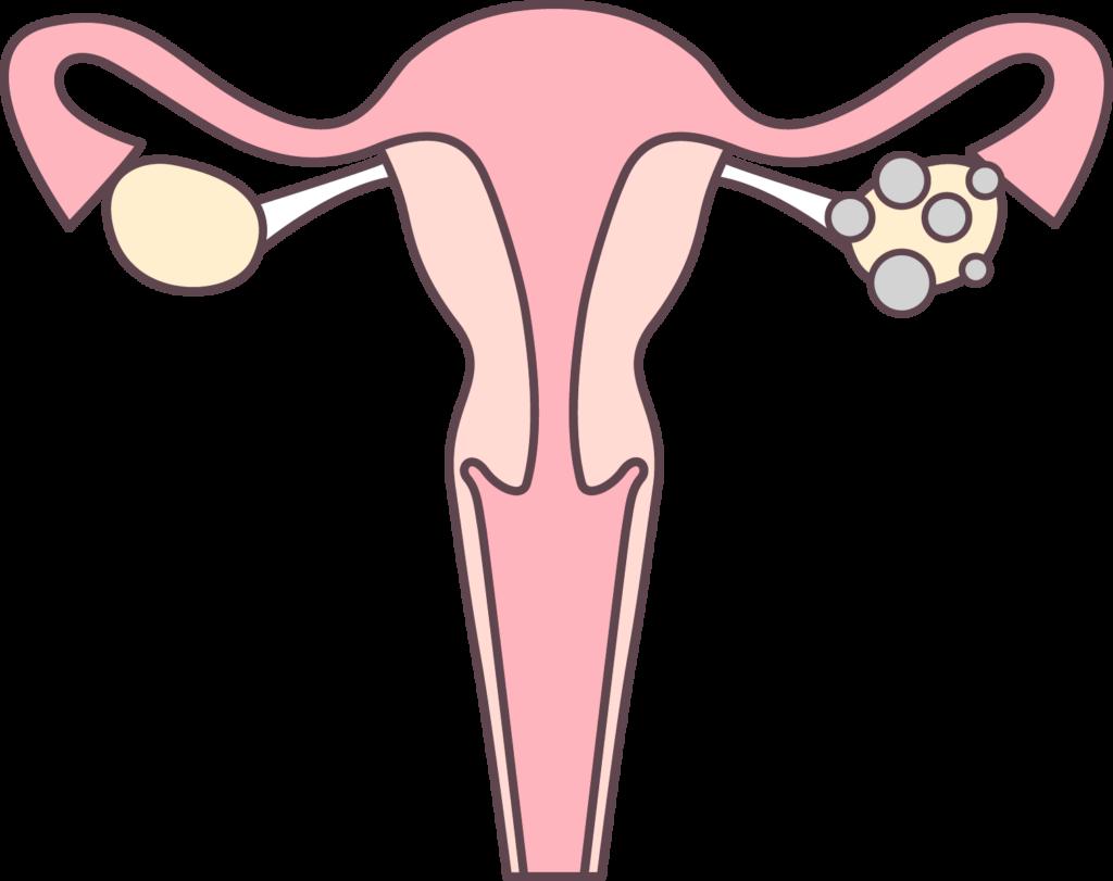 Normal vs. Polycystic Ovary Diagram - Reproductive Fertility Center - Dr. James P. Lin